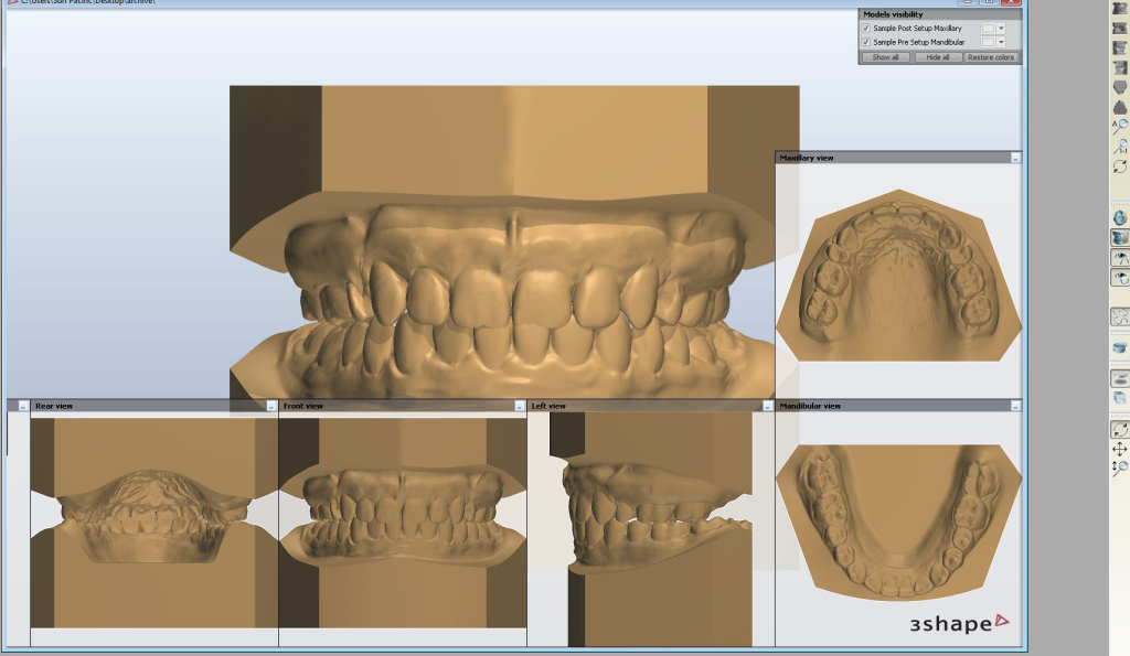 Orthodontic Software screen shot