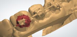 Digitally remove brackets