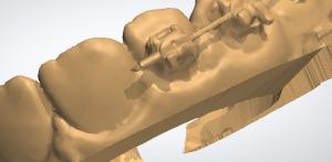 Digital Removed brackets