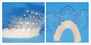 Kim aligners come in sets of 3 and each aligner is a different thickness.
